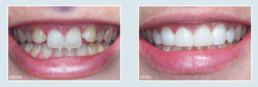 orange county teeth whitening