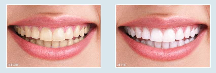 rancho santa margarita teeth whitening